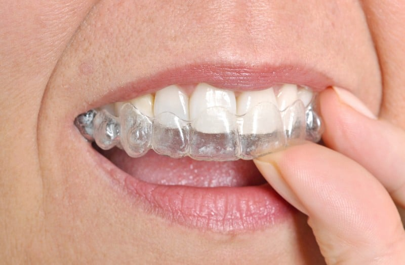Invisalign in Los Gatos