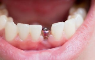 A single dental implant in a mouth