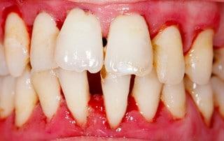Close up of gum disease