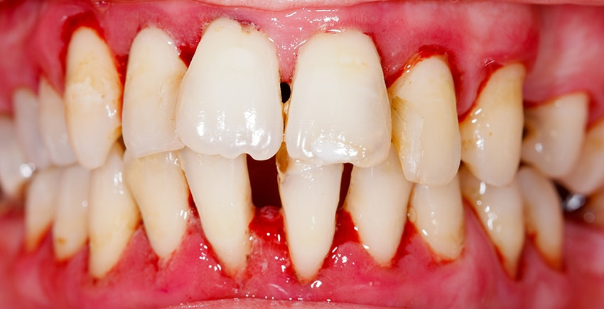 Close up of gum disease