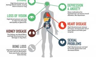 Top Down Dental sleep apnea infographic