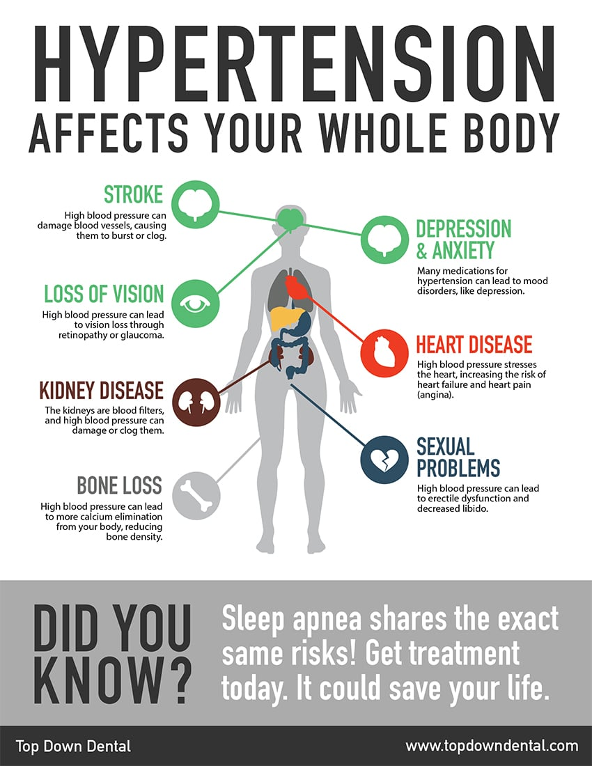 Top Down Dental sleep apnea infographic