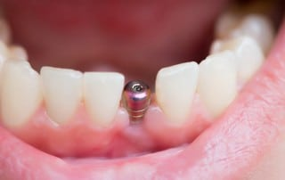 Gum Disease around Dental Implants Should Be Treated as Usual
