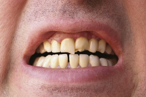 crown-gap-in-tooth
