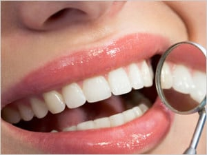 dental-fillings-sanjose-losgatos