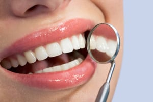 Things to consider about dental veneers, san jose, los gatos, cupertino, campbell, monte sereno, saratoga, santa clara