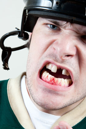 sport mouthguard injury