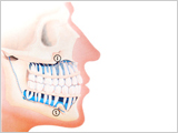 Learn about TMJ at Top Down Dental in Los Gatos