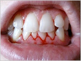 gum disease los gatos
