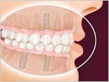Dental implants Los Gatos San Jose