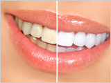 Teeth whitening sanjose