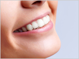 Teeth whitening Los Gatos